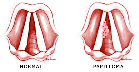 throat cancer caused by hpv hpv base of tongue cancer prognosis