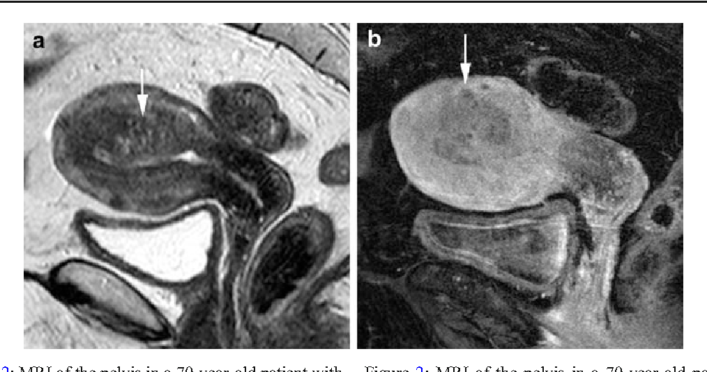 uterine cancer mri