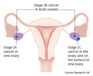 uterine cancer treatment stage 1