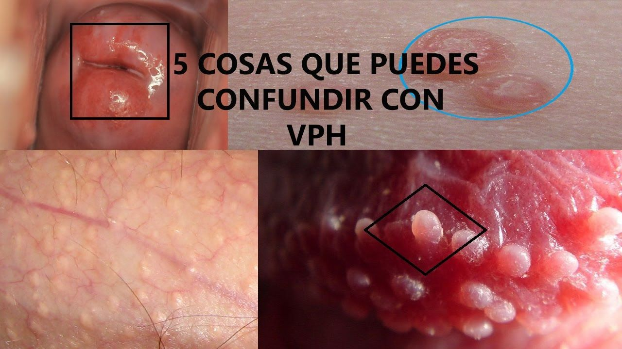 virus del papiloma humano herpes genital colorectal cancer in young adults