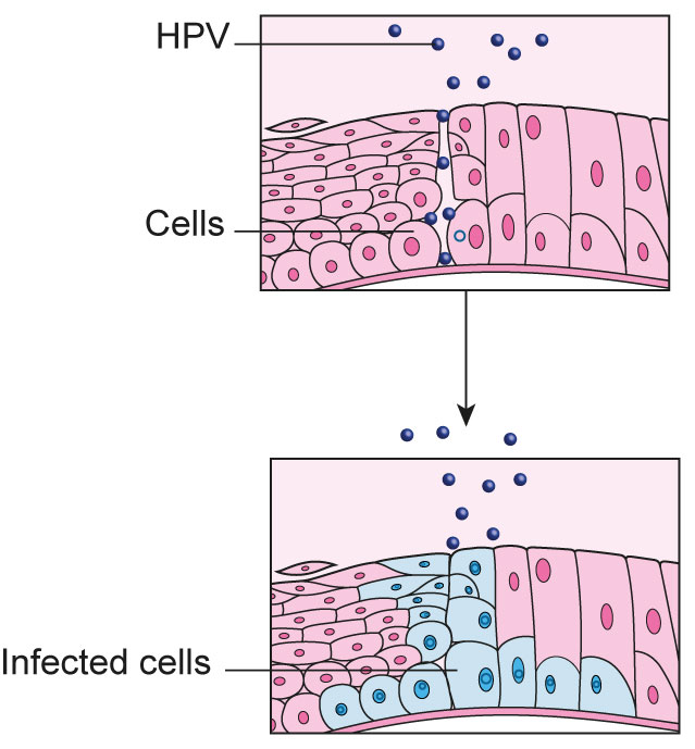 hpv treatment on cervix hpv cancer pathogenesis