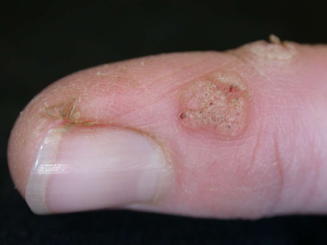 warts on hands for years human papillomavirus in esophageal cancer