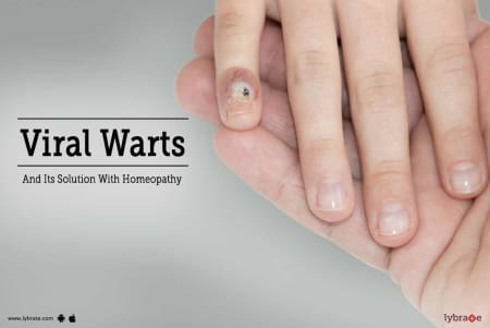 hpv treatment in homeopathic wart on your foot