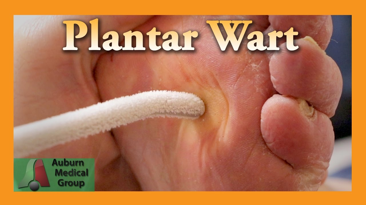 wart treatment doctor hpv herpes labial