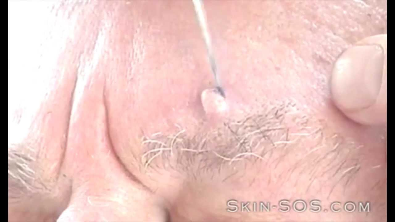 skin warts on face treatment