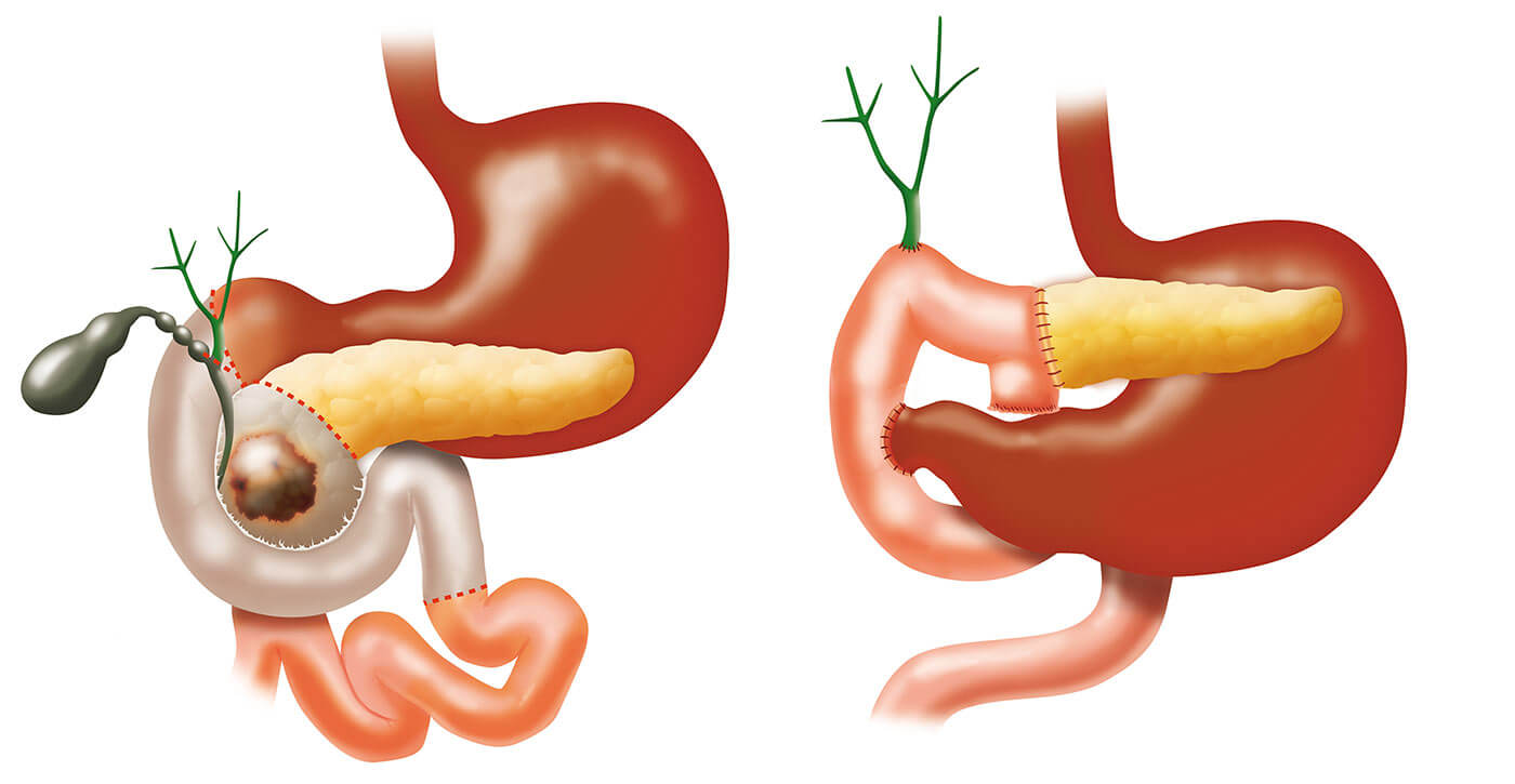gastric cancer amboss