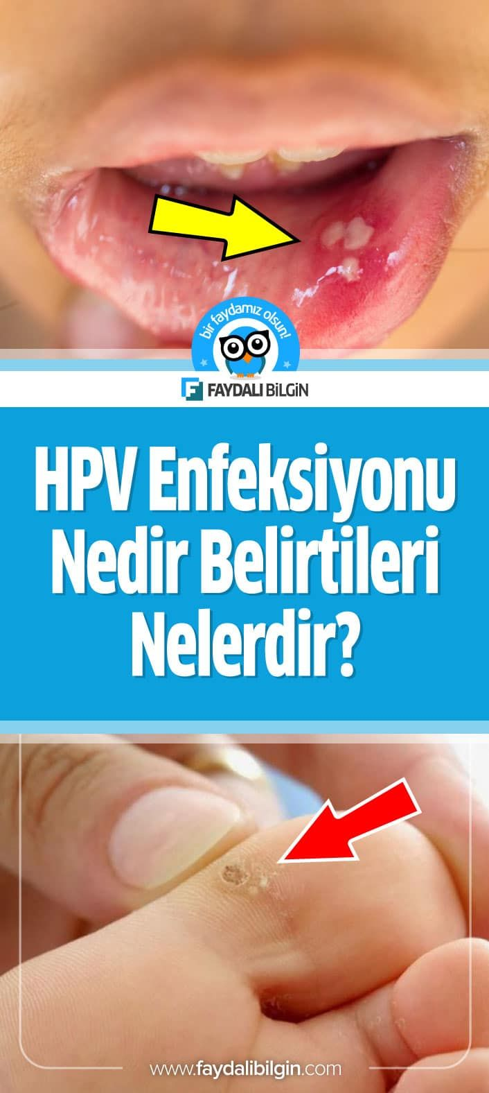 cheloo o zi ca oricare alta which hpv strains cause cervical cancer