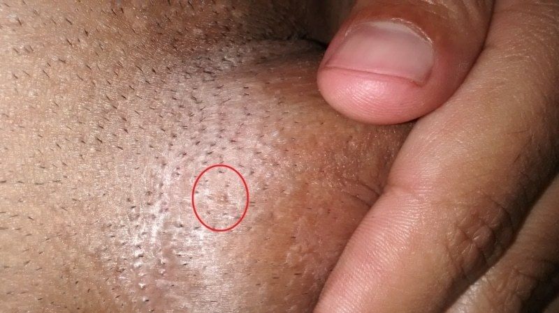 hpv urethral warts hpv treatment after hysterectomy