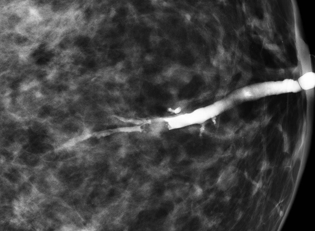 intraductal papilloma of breast left c difficile toxin