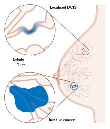 signs symptoms of breast duct papilloma
