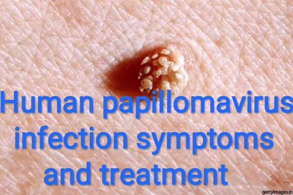 therapy for papilloma